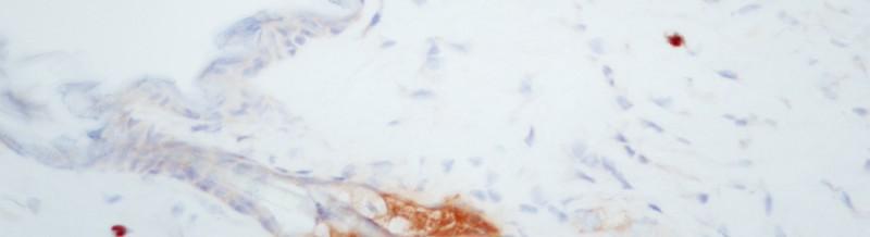 TCR-mouseB6-skin3-40X2